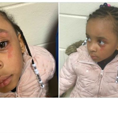 "Hailey Turner, 5, Hit In The Face By Teacher For Being a ""Tattletale"""